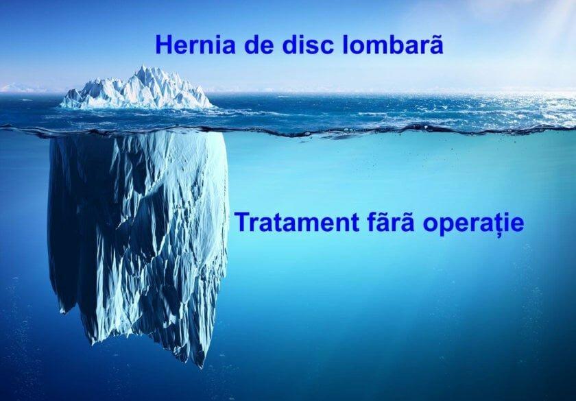 Hernia-de-disc-lombara-Tratament-fara-operatie